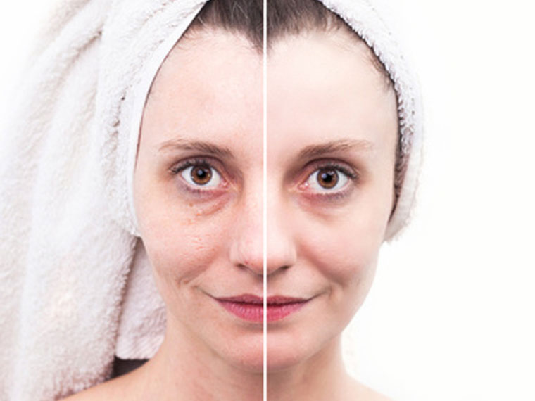 Beauty Studio Katalin Zimányi, EPN-System